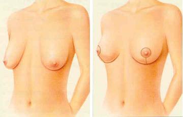 Breast Lift Surgery in Turkey
