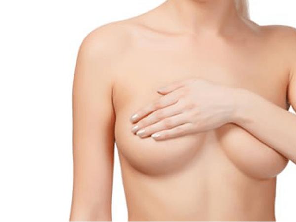 Breast Lift Techniques