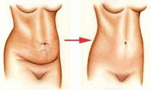karin-germe-ameliyati-sonrasi